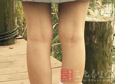 静脉曲张 女人大腿内侧黑得不行竟因这事
