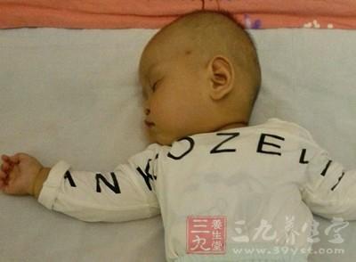 宝宝睡觉头出汗可能的原因是什么