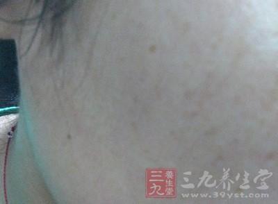 针灸治疗黄褐斑 黄褐斑的自我调护