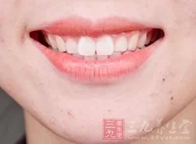 牙齿美容 牙齿健康一定要这么做