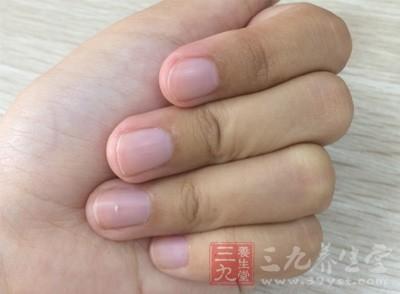 得甲沟炎的原因 指甲剪得太短会诱发甲沟炎