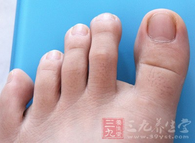 脚趾甲长肉里怎么办