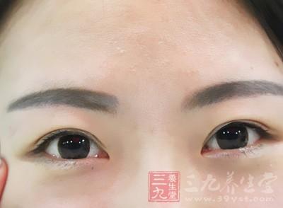 眼睛四周围干涩,或是出现像干燥地表的裂纹