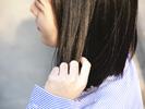 脱发原因及治疗
