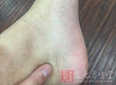 其实在人体脚后跟这个部位有太溪穴