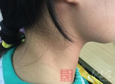 颈部皮肤非常薄